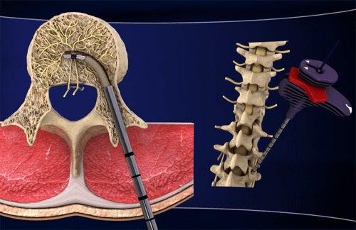 tratamentul cu foc de lumbago deteriorarea articulației de pe vârf