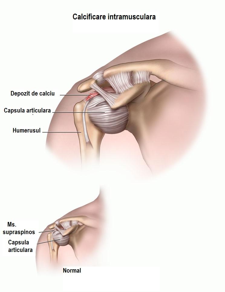 tratamentul detașării tendoanelor de umăr se ridică picioarele cu inflamație articulară
