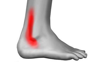 artrita articulației mâinii șolduri ale articulației șoldului