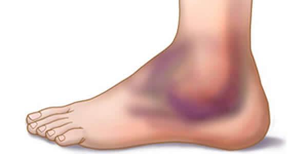 articulațiile rănite pe curs cremă sau unguent pentru osteochondroză