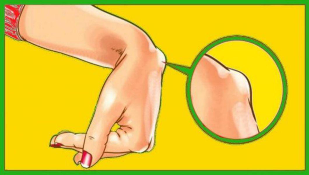 articulația încheietura mâinii doare o umflătură