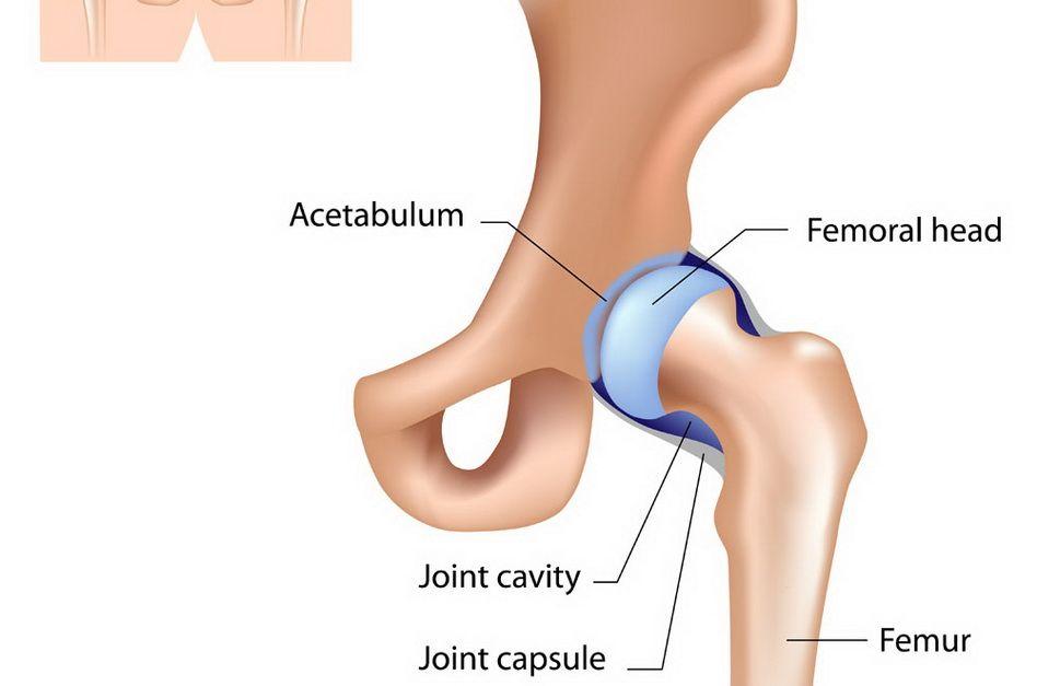 Articulația șoldului doare la mers și stând