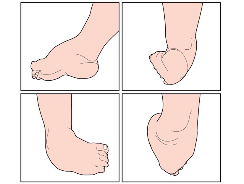 articulațiile picioarelor doare după cezariană dacă articulația degetului mare de pe braț doare