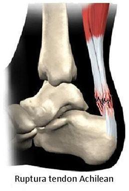 punct dureri în articulația umărului boala tendoanelor umărului
