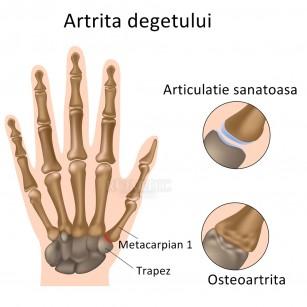 artrita articulațiilor simptomelor degetelor edem cu tratament cu artrita artrita