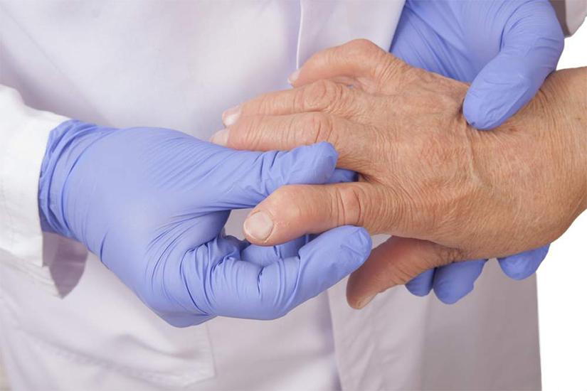 cum începe artrita pe braț