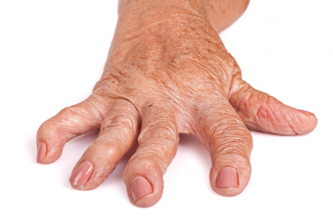 artrita reumatoidă a mâinilor primele simptome balsam pentru articulațiile picioarelor