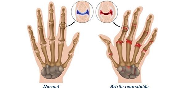 artrita reumatoidă a mâinilor primele simptome artroza șoldului înot