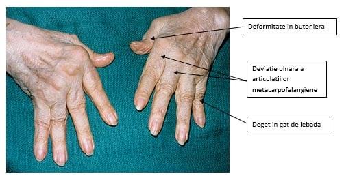 artrita reumatoidă deformarea degetului