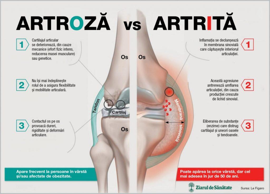 urcă mâinile cu artrită tratamentul pilelor de artroză