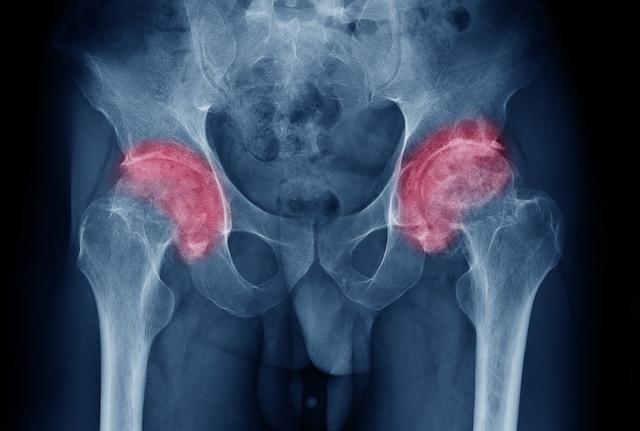 Reiki pentru dureri articulare când articulațiile cotului mâinilor se doare