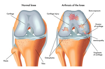 artroza bolii articulare articulația umărului doare