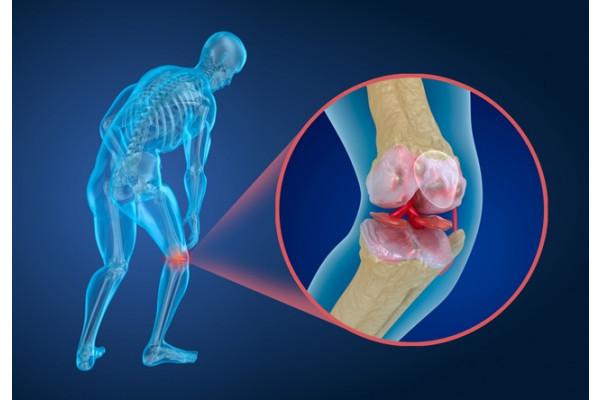 artroza articulației umărului stâng 2 grade inflamație articulară pentru a trata