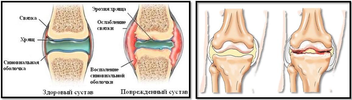 dureri articulare cauze și semne tratarea leziunilor tendoanelor genunchiului