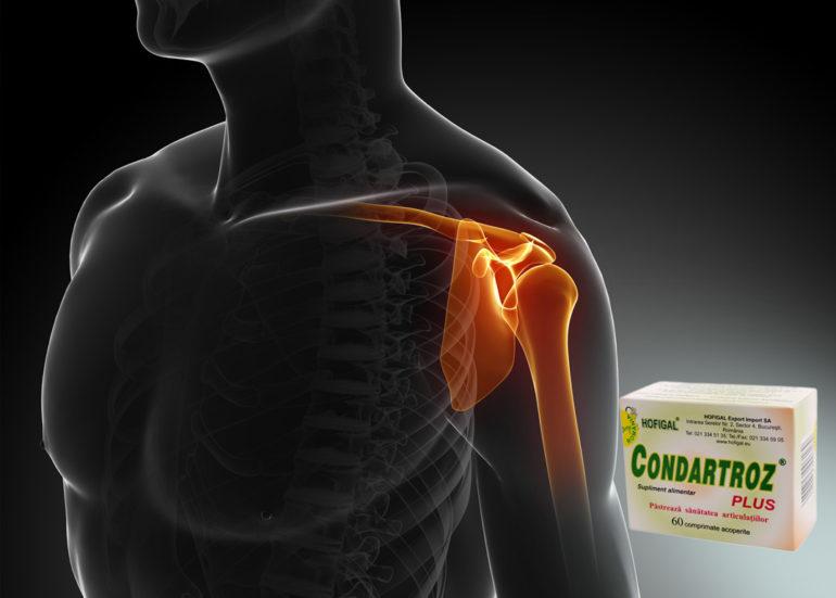 artroza simptomelor și tratamentului din spate dureri articulare ce să facă cum să tratezi