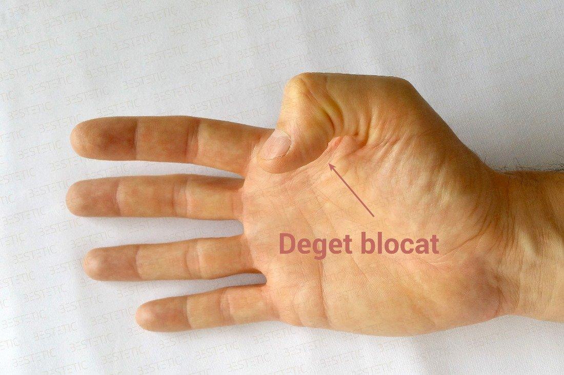 unguent pentru articulația degetului