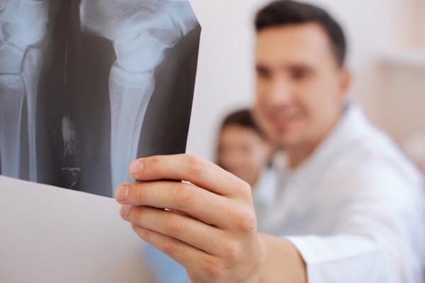 ce este nou în tratamentul artrozei când mergeți, doare în articulația șoldului stâng