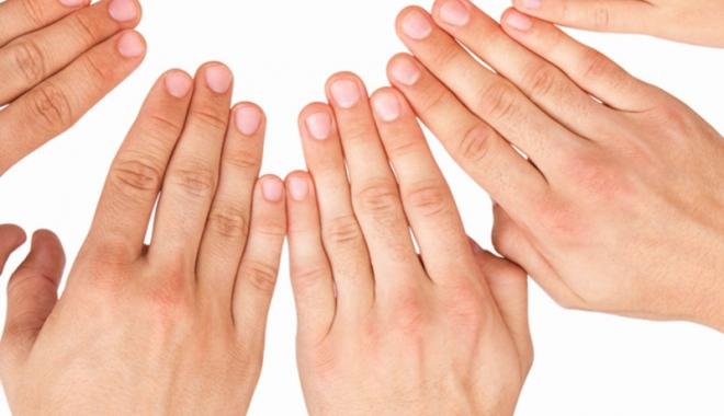 dureri articulare volatile umflarea articulației pe cot