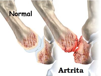 trata artrita degetului mare