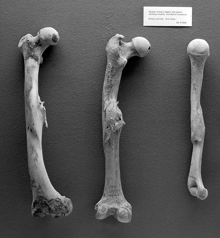 Boala latină a oaselor și articulațiilor unguente cu geluri creme pentru tratamentul articulațiilor