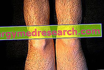 Rupturile de menisc – diagnostic și tratament