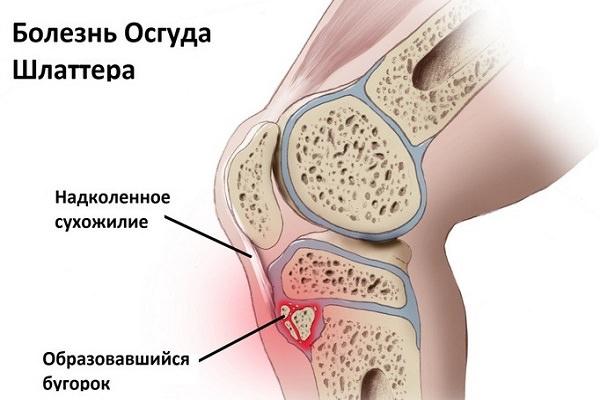 Boli ale ligamentelor și tendoanelor articulației șoldului. Praf antiinflamatoare
