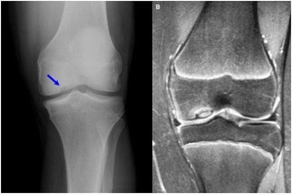boli degenerative distrofice ale articulațiilor genunchiului