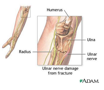 brațul în cot este amorțit și dureros Durere Orvi la articulații și mușchi