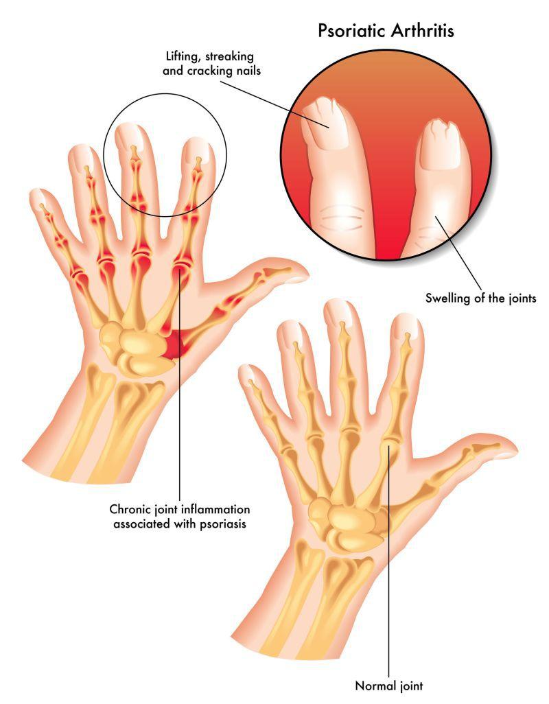 sub sarcini, articulația cotului doare
