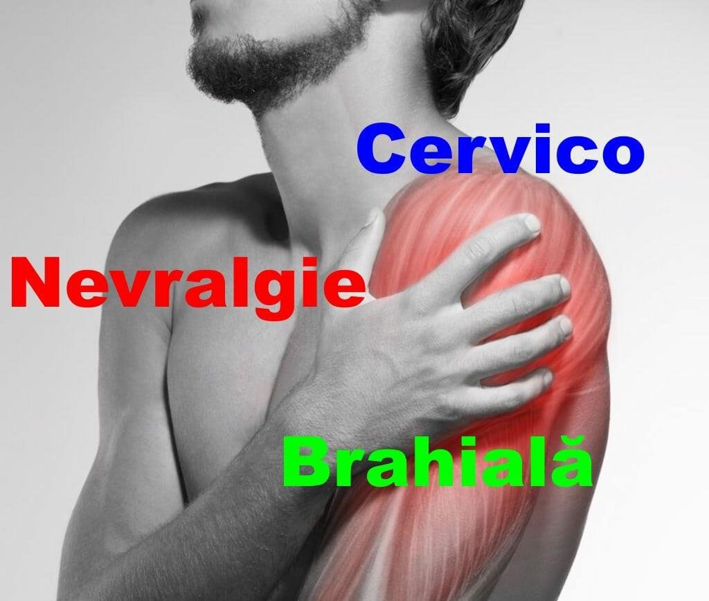 artroza brahială cervicală ce tratament extern