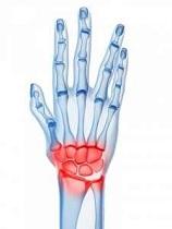 arată tratament de inflamație la încheietura mâinii durere în articulațiile degetelor noaptea