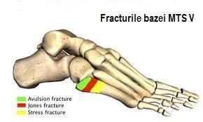 dureri articulare metatarsiene rețete de tratament articulații