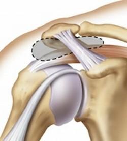 lichidul în articulația genunchiului provoacă tratament articulații care îmbunătățesc circulația sângelui