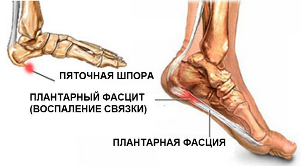 articulațiile doare la mers cercetarea durerii articulare