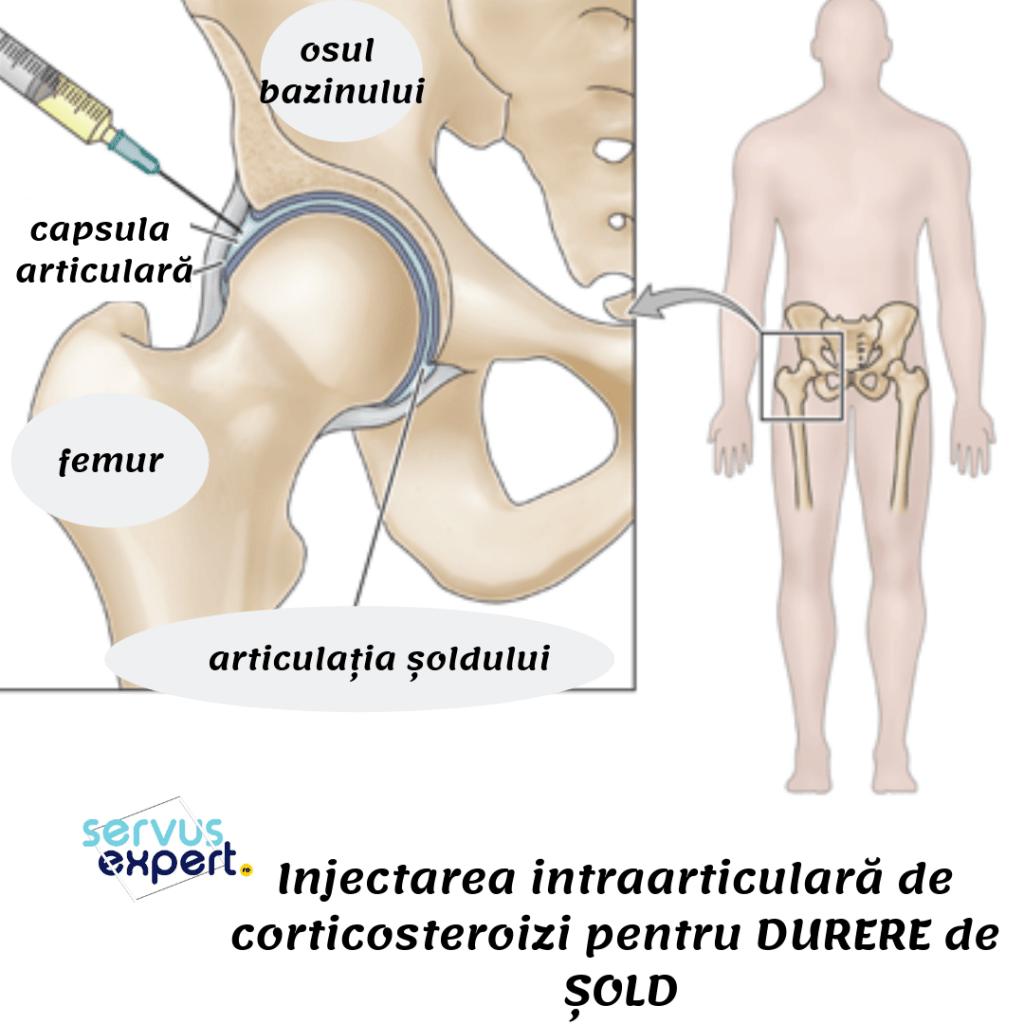 inflamația articulației la nivelul coapsei simptome și tratament epicondilita cotului medial