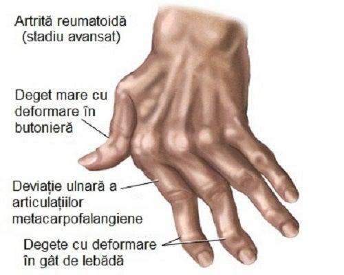 Cum să recunoască artrita mâinilor,