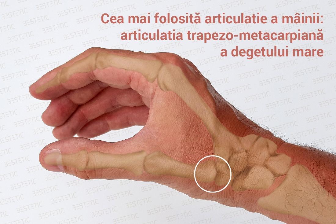 dispozitive magnetice pentru tratamentul artrozei