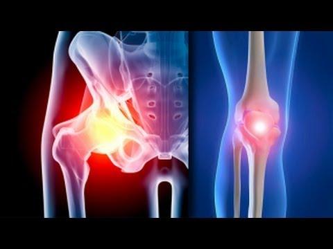 cum se tratează artroza genunchiului