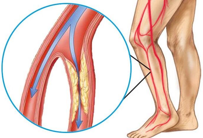 durere în articulația membrului inferior la mers