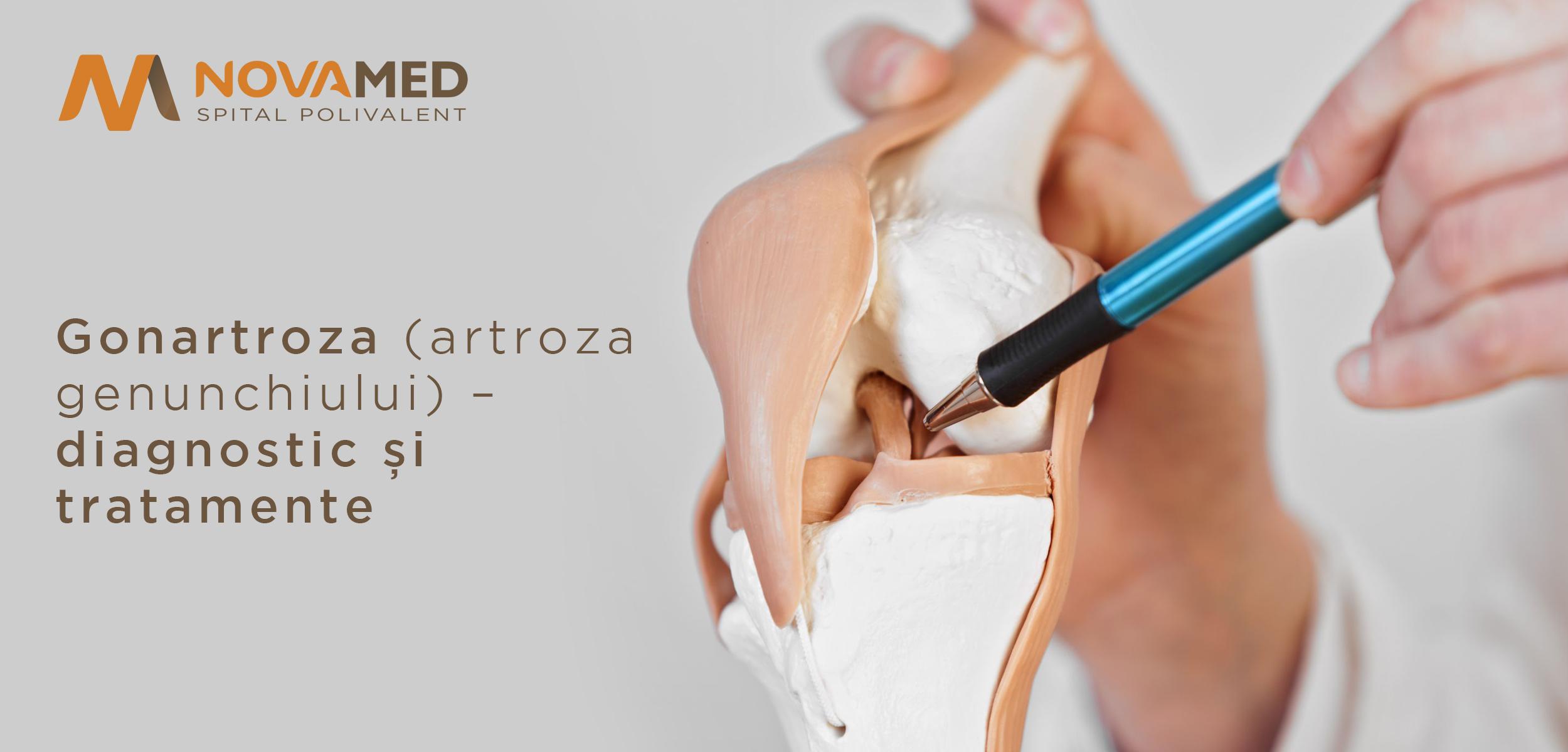 remedii eficiente pentru artroza articulației genunchiului divorț artropant