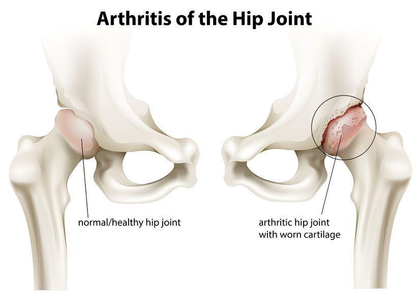 durere cauzată de coxartroza articulației