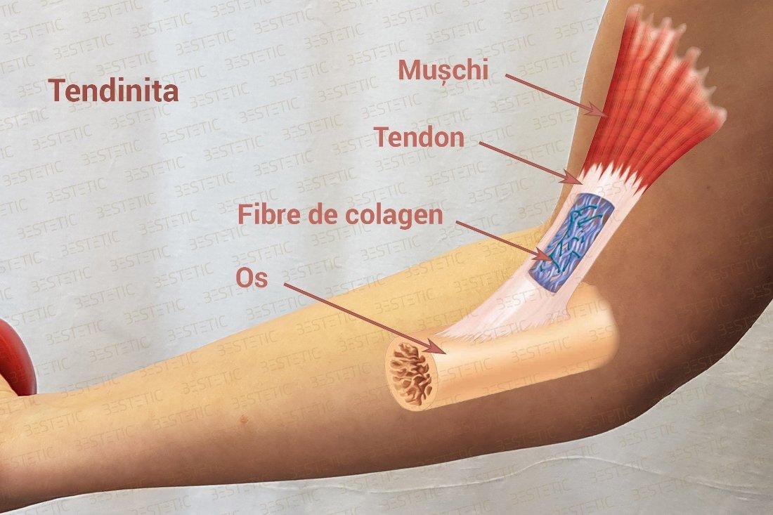 durere de tendon artrita și artroza tratament cu lut