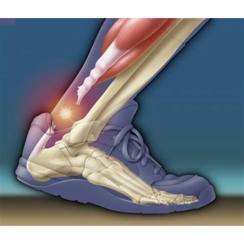 durere de tendon care au articulațiile genunchiului