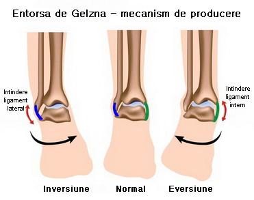durere în entorsa genunchiului