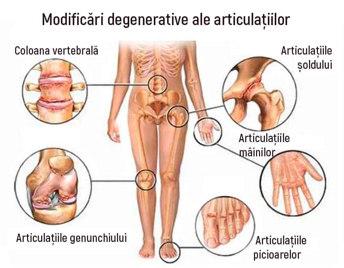 ce să faci injecții pentru durere în articulații