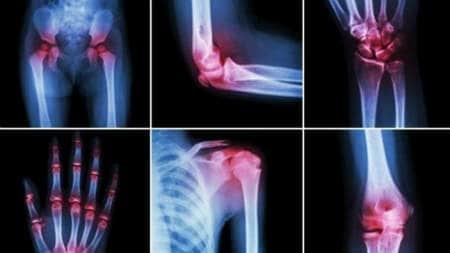 Tratamentul DOA al genunchiului