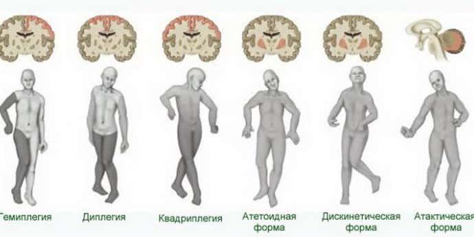 paralizie cerebrală - Traducere în engleză - exemple în română   Reverso Context