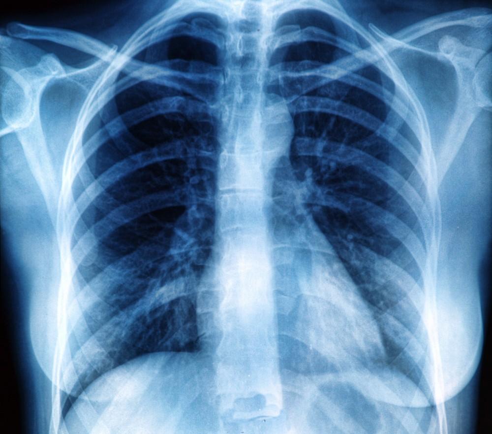 dureri articulare cu sarcoidoza plămânilor inflamația articulațiilor picioarelor simptome și tratament