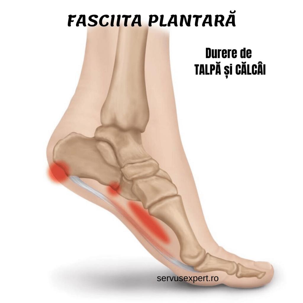 dureri articulare de călcâie dimineața dureri de spate pe partea stângă și articulații