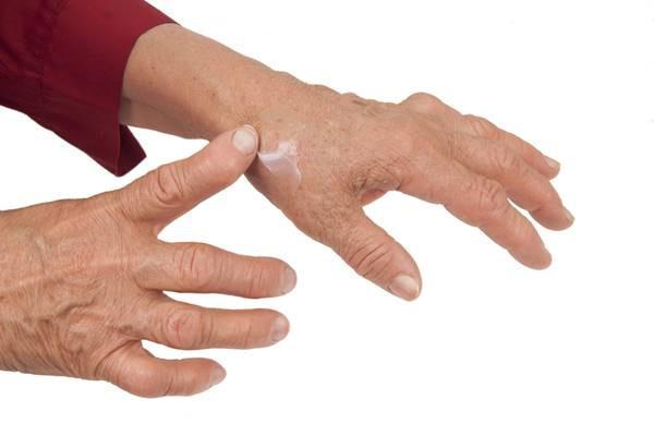 dureri articulare și degete umflate bicarbonat de sodiu pentru dureri articulare